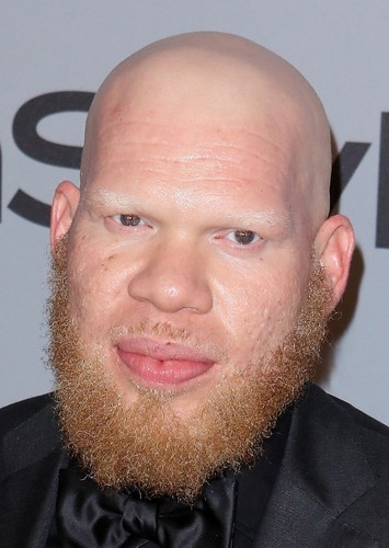 Marvin 'Krondon' Jones III as Tobias Whale in Black Lightning (Arrowverse)